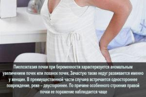 Пиелоэктазия правой почки у беременной