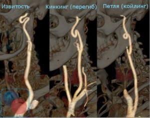 Патологическая извитость левой позвоночной артерии Потеря слуха!