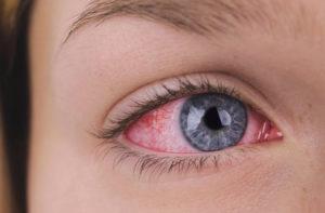 Краснеют глаза при ношении линз.