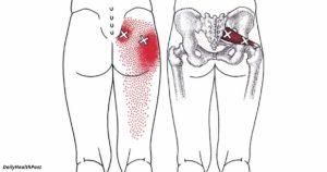Острая боль в левой ягодице после тренировки