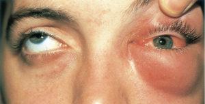 Боль в глазном веке и отек после капельницы