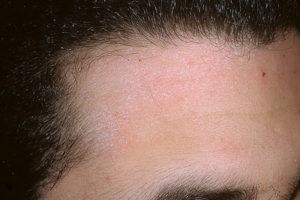 Жирная кожа головы и лица
