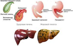 Панкреатит холецистит хронический гепатит