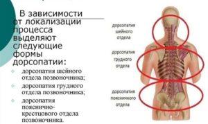 G90.9, дорсопатия