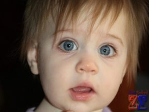 Обнаружила у ребенка разный размер зрачков