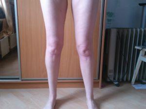 Правая нога толще левой