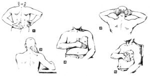 Диффузный пневмосклероз, дыхательная гимнастика