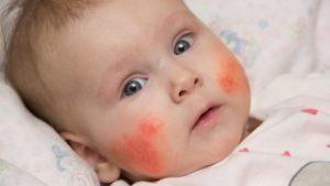 Аллергия ли это у ребенка?