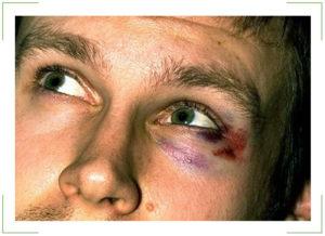 Закрытый перелом носа, синяки вокруг глаз, понижение зрения
