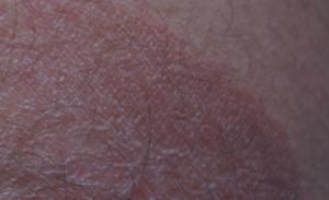 Красные пятна между ног возле яичек