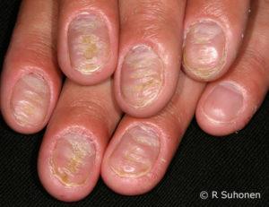 Дарсонваль себорейный дерматит грибок ногтей и стоп