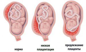 Беременность 19 недель плацентация