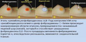 Боли и уплотнение в груди после удаления фиброаденомы