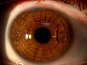 Блики в поле зрения после факоэмульсификации ИОЛ в левом глазу