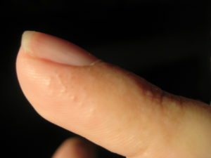 Чешутся подушечки пальцев
