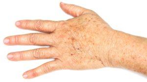 Тёмное пятно на руке