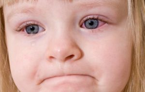 Краснеют глаза к вечеру у ребенка