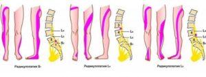 Межпозвоночная грыжа, боли в ноге