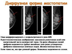 Диффузные изменения паренхимы молочных желез