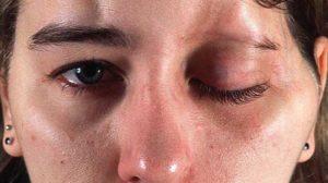 Последствия от укола