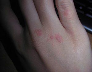 Болячки на руке