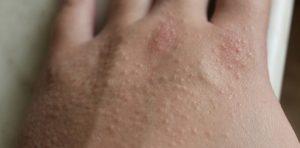 Сыпь на кистях рук