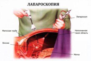 Боли после лапароскопии в правом боку