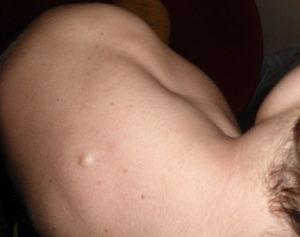Удаление фибролипомы