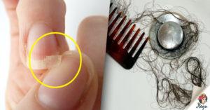 Выпадают волосы, ломаются ногти