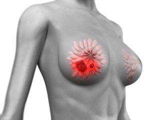 Боль в груди и красное пятно на месте боли
