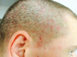 Стафикокк на коже головы