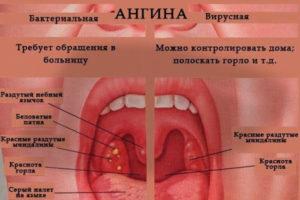 Болит горло и температура 39