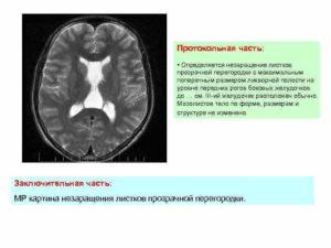 Незаращение листков прозрачной перегородки головного мозга