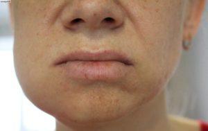 Опухла щека после пломбирования канала
