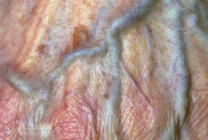 Посинела и опухла половая губа