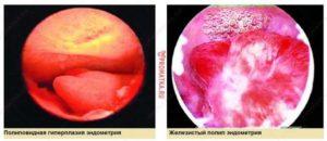 Что значит косвенные признаки железистого полипа