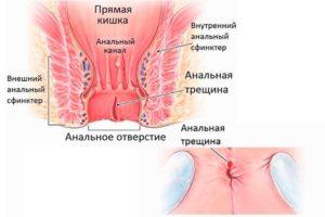 Анальная трещина у грудничка