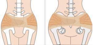 Болят тазовые кости после родов