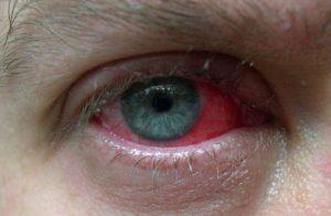 После операции катаракта глаз красный и слезится