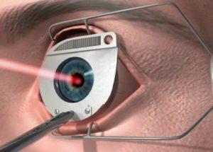 Очки после операции катаракты на один глаз
