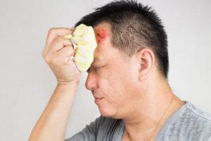 Ощущение гематомы в голове