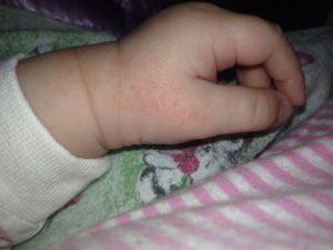 Сухие пятна на руках у ребёнка