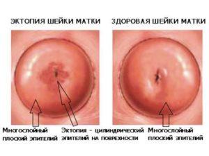 Что должно насторожить при прижигания очага эндометриоза и эрозии