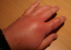 Чешется рука после царапины кота