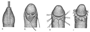 Опух венец полового члена