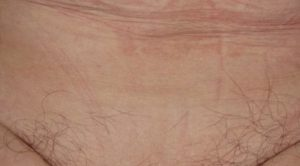 Волосы на половых губах