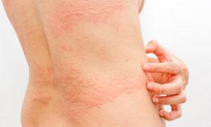 Аллергическая реакция на прикосновение
