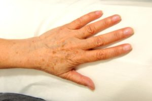 Тёмное пятно на кисти рук