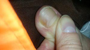 Коричневое пятно на ногте мизинца ноги
