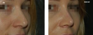 Опустился кончик носа после вторичной ринопластики